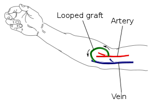 arteriovenous_graft1
