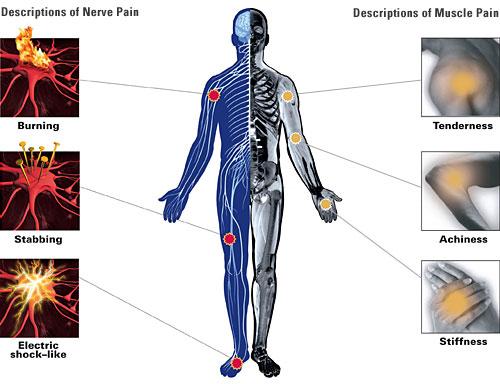 diagram of cramp 11 | april | 2009 | primum non nocere