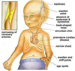 progeria.jpg