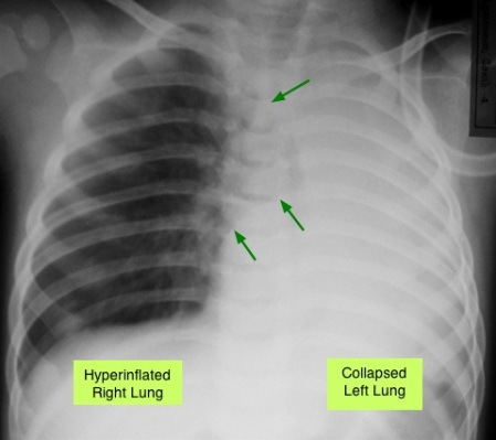 collapsed-left-lung