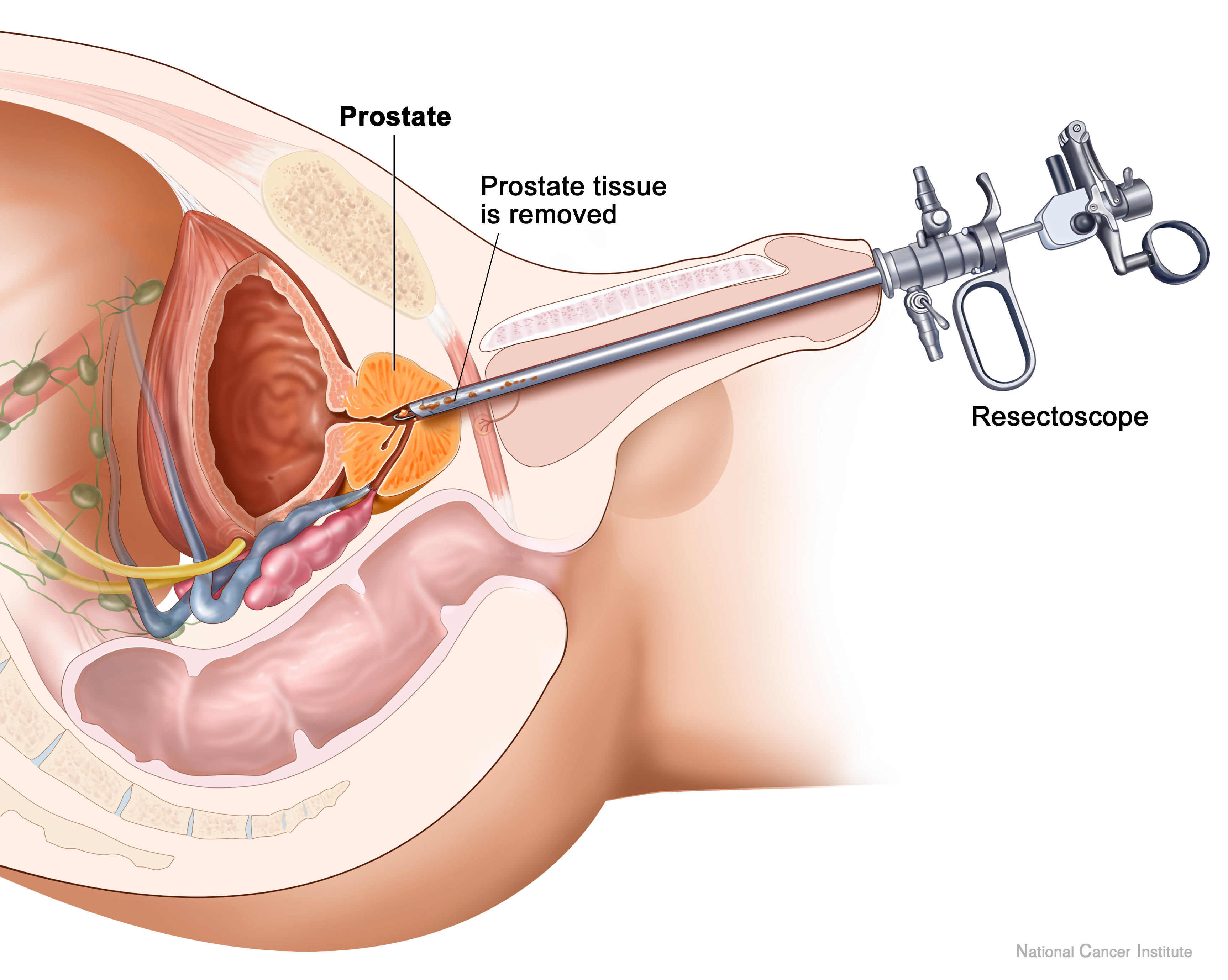 Transurethral prostate resection is a procedure where cellular ...