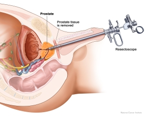 transurethral prostate resection