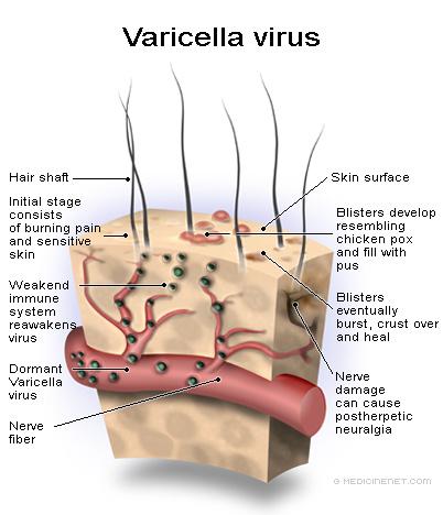 Chicken pox (Varicella Zoster virus) | Primum non nocere Varicella Vaccine Rash Contagious